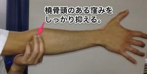 図7 橈骨頭の位置。