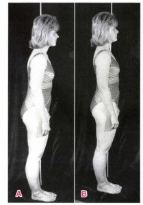 図1※エンタープライズ「脊椎のリハビリテーション上巻」より抜粋。